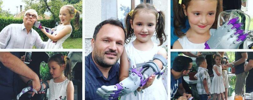 Een man en een meisje met een prothese