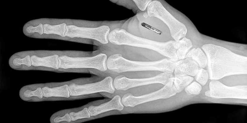 X-Ray image of hand with microchip implant